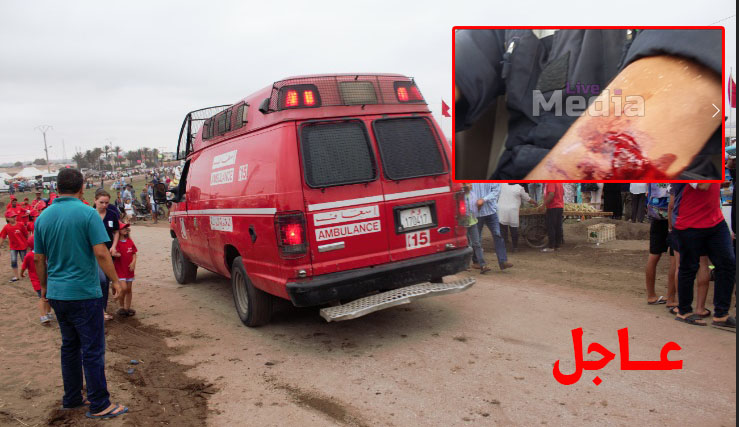 عــاجل !! هجوم خطير بالحجارة على سيارة الإسعاف بالمحمدية..والسائق يتعرض لاصابة خطيرة