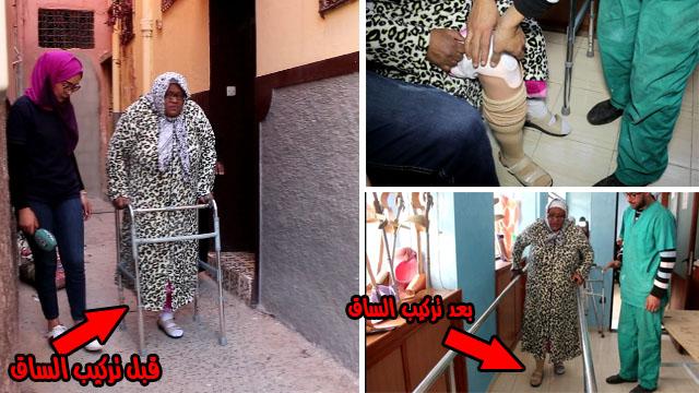 شاهد فرحة سيدة تتمشى من جديد ..بعدما بترت رجلها بسبب داء السكري ( نهضة زناتة )