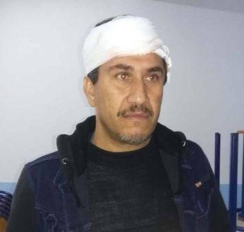 المحمدية … مدير ثانوية يتعرض لأعتداء من طرف تلميذ