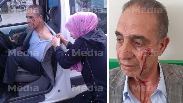 عــاجل الصور : لحظة الاعتداء على مدير النادي البلدي بالمحمدية + تفاصيل جديدة