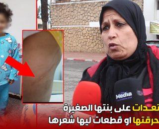المحمدية .. ام تعـدات على بنتها الصغيرة .. بعدما حرقتها او قطعات ليها شعرها