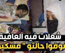 """شاب يعاني من """" الصرع """" تعرض لحريق خطير وهو حاليا بين الحياة و الموت بعين حرودة"""