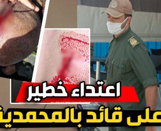 اعتداء خطير بالسلاح الأبيض .. على قائد بالمحمدية اتناء تدخله