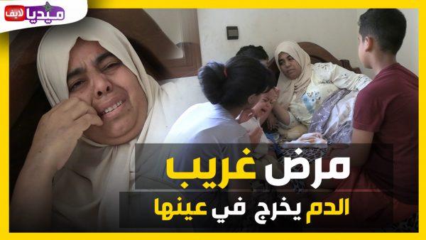 الأم الحنونة أصابها مرض غريب ..الدم يخرج من عينها  .. بالمحمدية